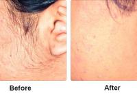 Laser Hair Removal – Remove Unwanted Hairs Quickly And Safely