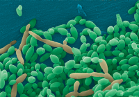 What Do You Need To Know About Candida?