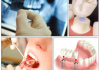 What Should You Do When Selecting The Perfect Dentist?